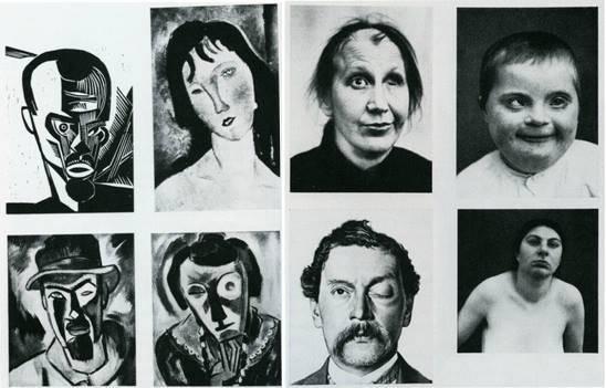 Pour preuve il y reproduit des exemples d'art moderne (ici le peintre expressionniste allemand Karl Schmidt-Rottluff et Amedeo Modigliani) à côté de photographies de personnes avec des difformités et des maladies, renforçant graphiquement l'idée de modernité en tant que maladie.